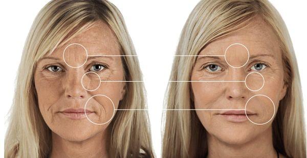 crema antiarrugas antes y desp_opt